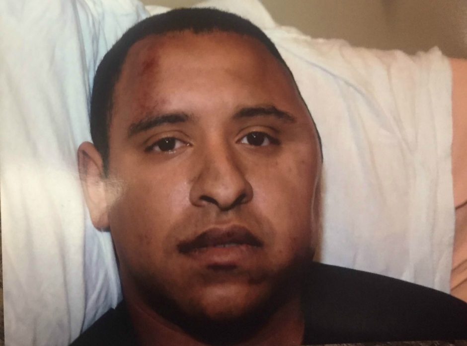 Schenectady Police Officer Mark Weekes is pictured at Ellis Hospital in this Aug. 1, 2015, evidence photo. James Hilton is standing trial, accused of attacking Weekes early that morning on State Street downtown, causing a fracture to Weekes' skull, sev...