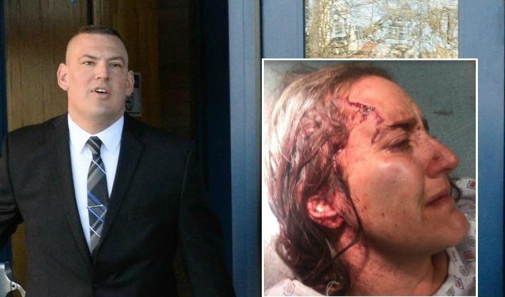 Nicola Cottone's injuries (inset); Schenectady police officer Mark McCracken (background)