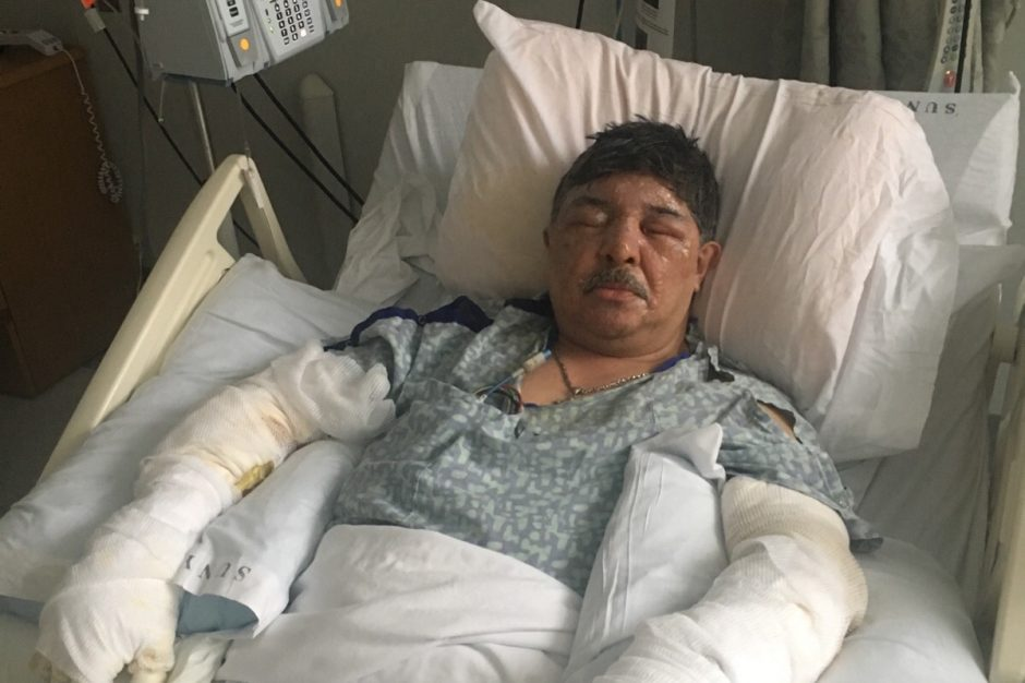 Ernesto Morales was badly burned in a house fire.